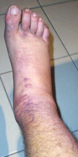 ankle-after-crash2sm